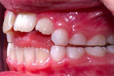 zähne ohne zahnspange gerade bekommen
