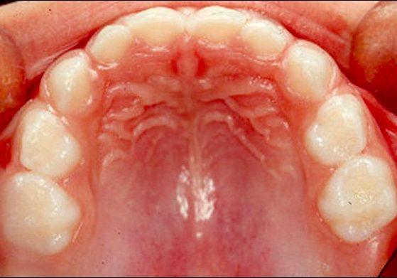 Milchgebiss, Kinder, Zahnarzt